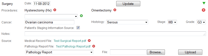 Surgery history event in the detailed display mode in Colabrativ's Clinical Entry and Operations (Cleo) application.  All of the personal information displayed in this figure is fictitious, and does not represent a real individual or their medical history.
